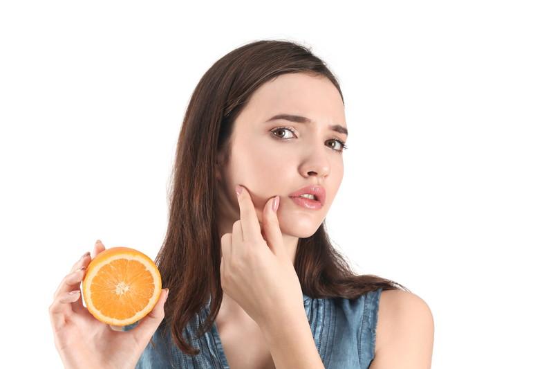 オレンジ肌